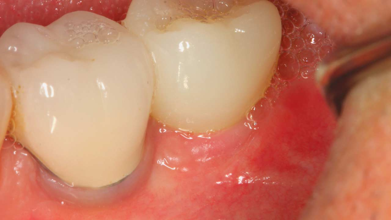 Ceramic Dental Implants Before and After