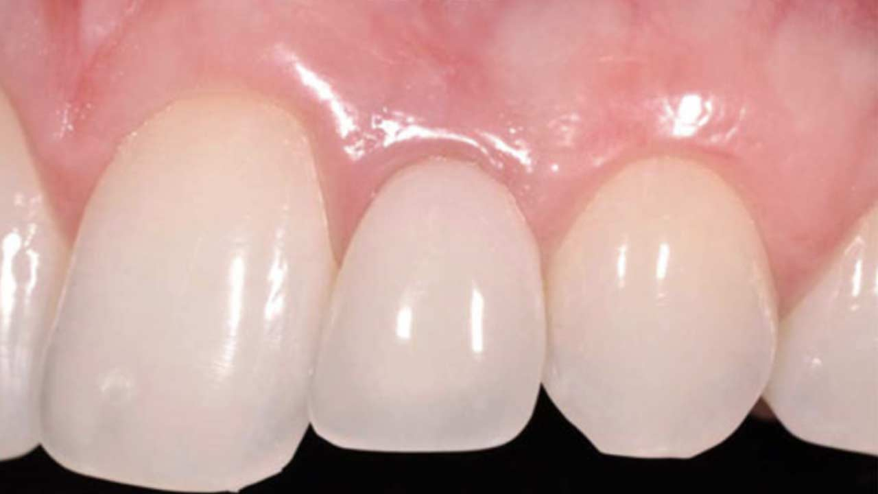 Ceramic Dental Implant Before and After