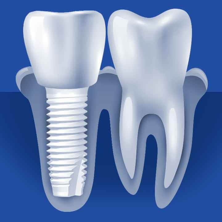 Ceramic Dental Implant Process