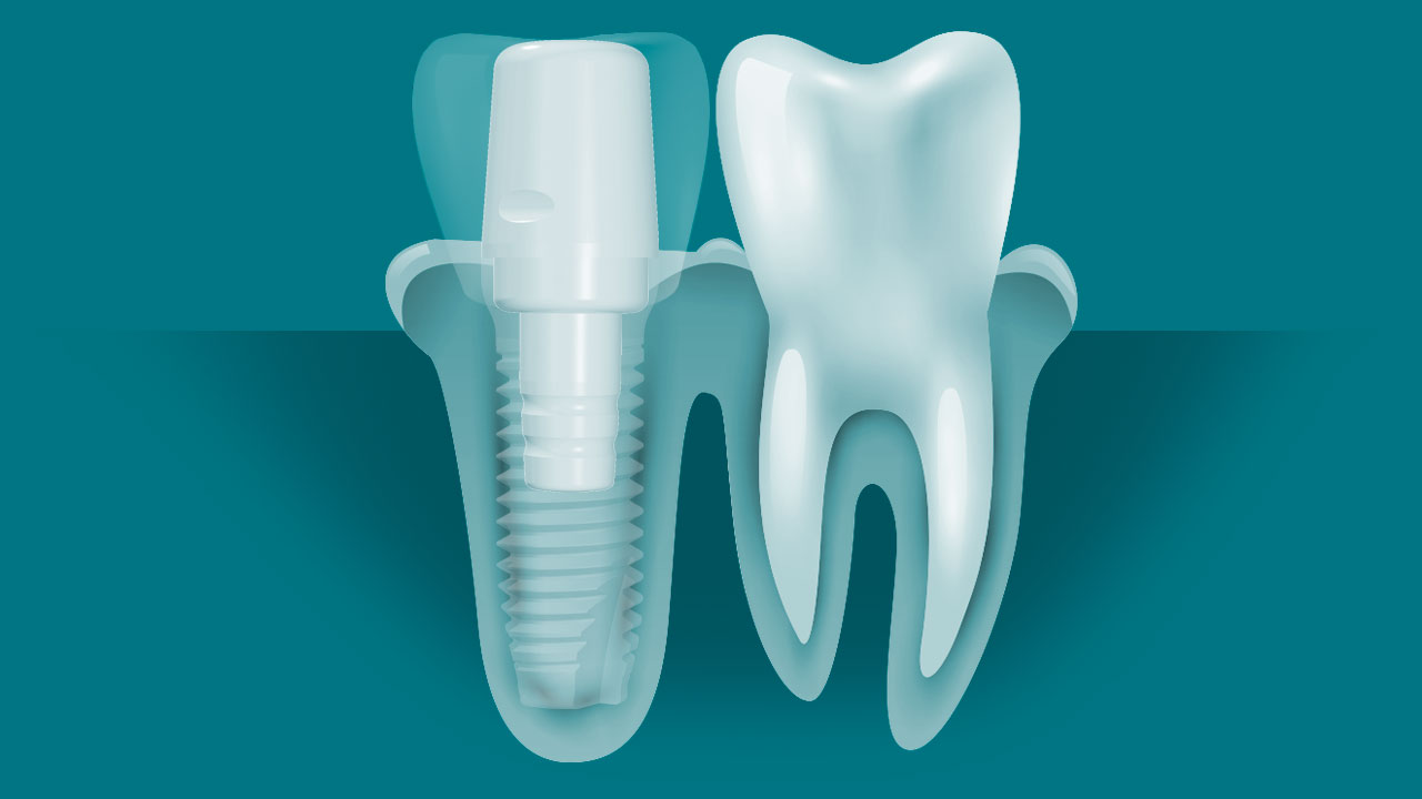 Ceramic Dental Implant Abutment Diagram