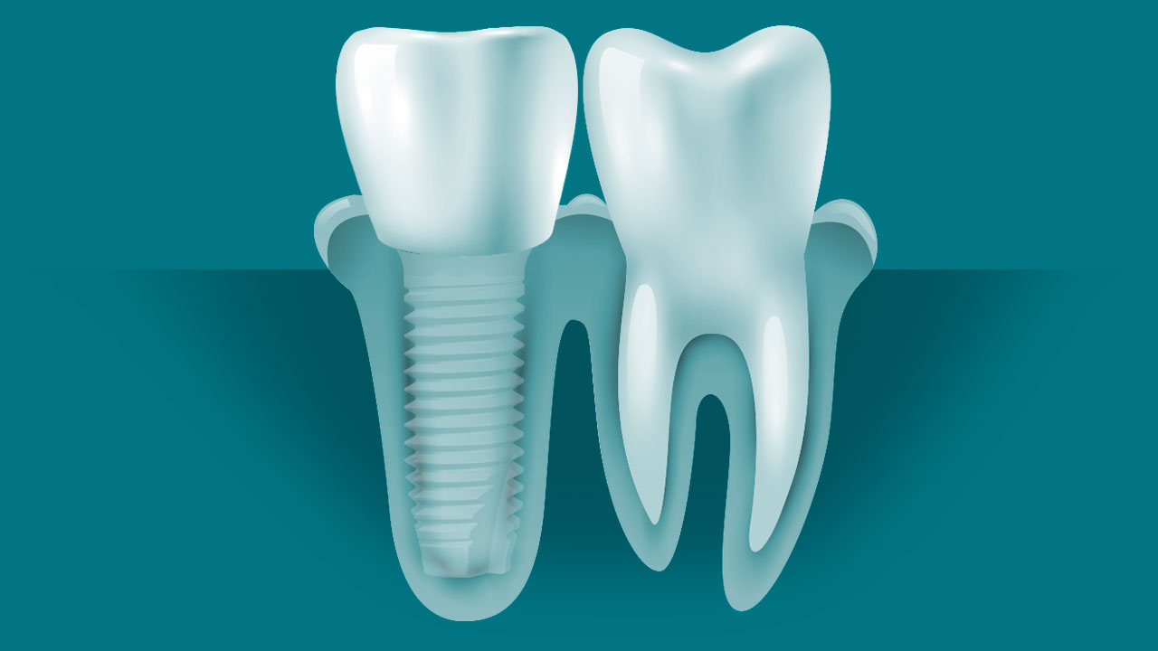 Ceramic Dental Implant Crown Diagram