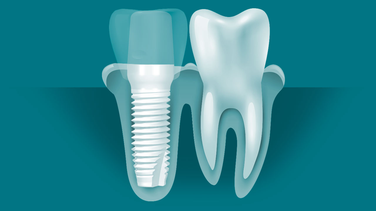 Ceramic Dental Implant Screw Diagram